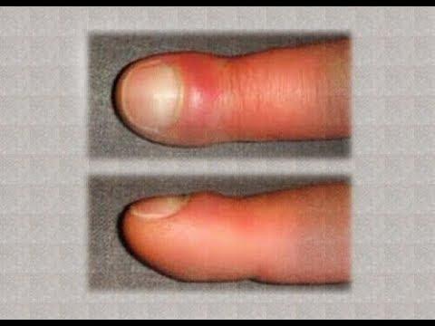 Stan zapalny kości w stopie w pobliżu dużego palca