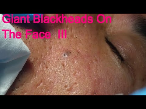Facial Blackhead Multiples!
