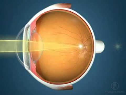Лазерная коррекция зрения в 10 больнице