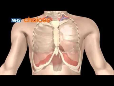 Бронхиальная астма. Откуда берется и как лечить ?