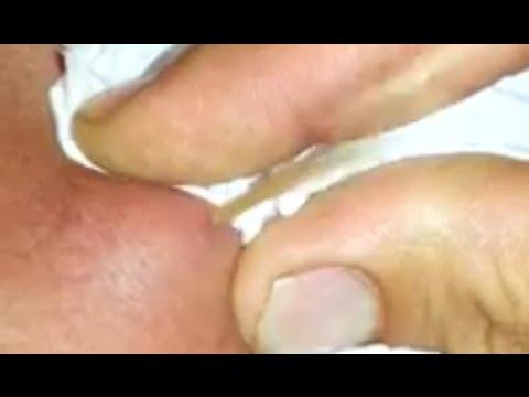 Die Hautentzündung bei grudnitschka von den Würmern