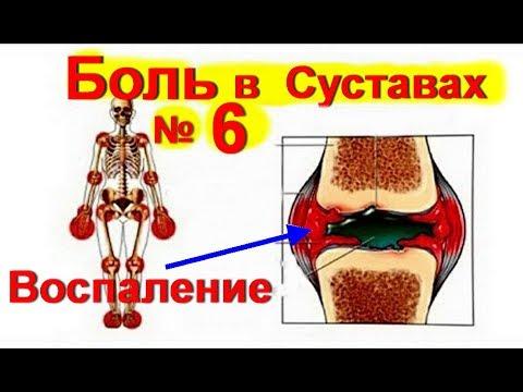 Боль в Суставах ! Лечение суставов- как снять воспаление |  #больвсуставах  #edblack