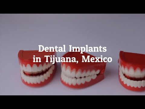 Why Go for Dental Implants in Tijuana, Mexico?