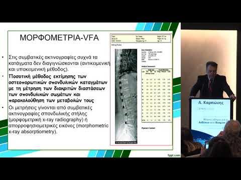 Καρπώνης Α. - Πέραν της DXA: εφαρμογές των νέων απεικονιστικών μεθόδων για τη διερεύνηση του σκελετού