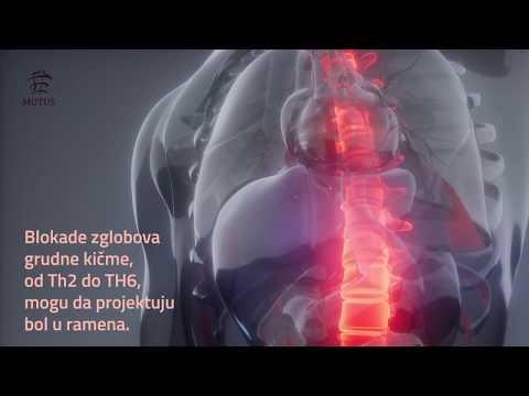 Liječenje hipertenzije dot informacija