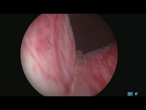 Prostata-Massage, Blut erscheint