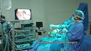 Arthroscopy Rotator Cuff Surgery