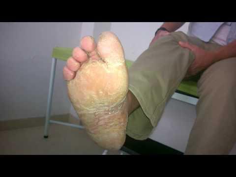 Los ungüentos de la psoriasis chino fufan