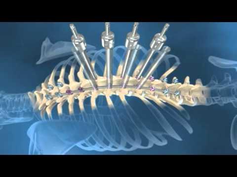Gel antinfiammatorio per articolazioni e muscoli