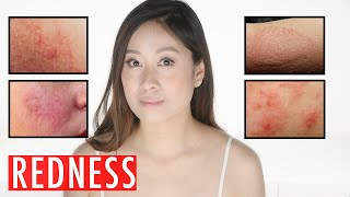 Redness On Face | Causes | Products To Get Rid of Red Skin