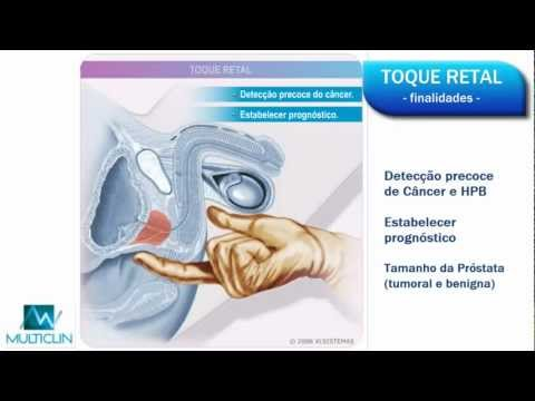 Fórum prostatite viferon