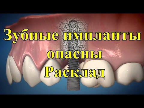 Зубные импланты опасны. Расклад.