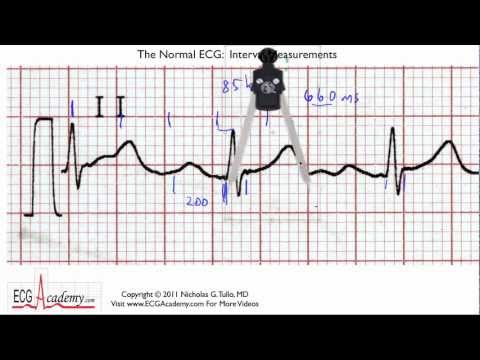 ECG Interpretation, Interval Practice, Part 6-5