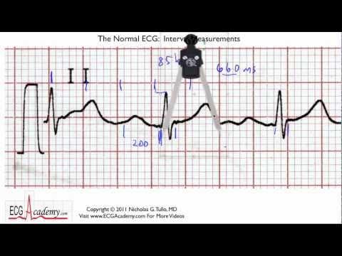 Interpretacja EKG - Interwały, 6-5