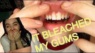 WHITENING MY TEETH GONE WRONG