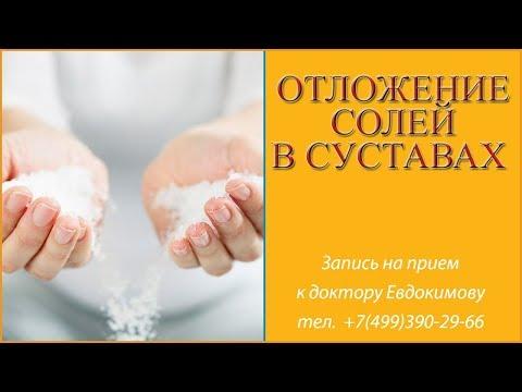Как убрать отложение солей в суставах?  Причины, лечение. Говорит врач остеопат Александр Евдокимов