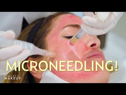 Vampire Facial? We tried Microneedling with PRP!