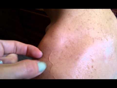 Le shampooing de goudron de la mamie agafi du psoriasis