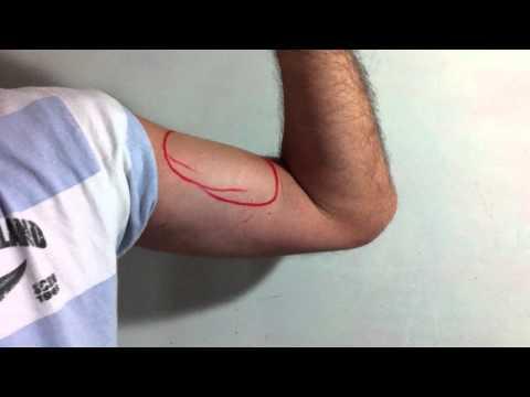 Fibroma en la articulación del dedo