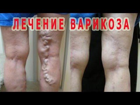 Die Symptome der Thrombose podkolennoj die Adern
