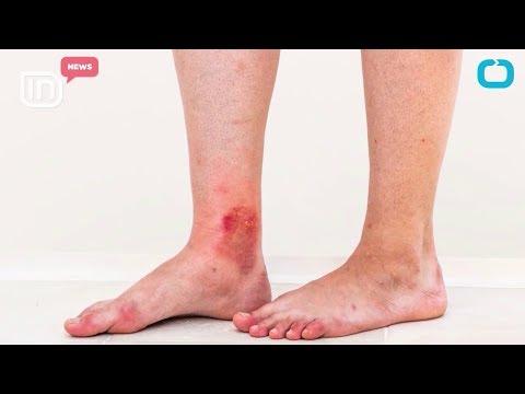 La forme denfant atopitcheskogo de la dermatite