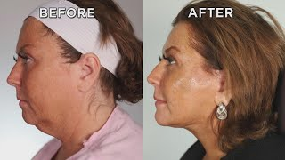 Watch Abby Lee Miller Get a Facelift While Awake!