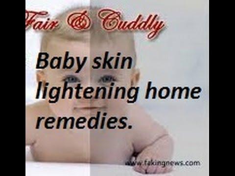 baby whitening tips, baby whitening cream, baby whitening soap part1