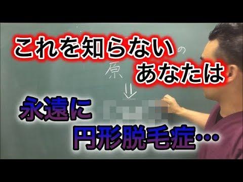 , title : '福岡 円形脱毛症の真の原因とその治し方【女性薄毛改善への道のりVOL 74】