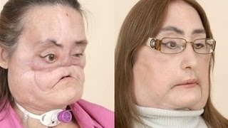 Первая в мире пересадка лица. История Конни Калп