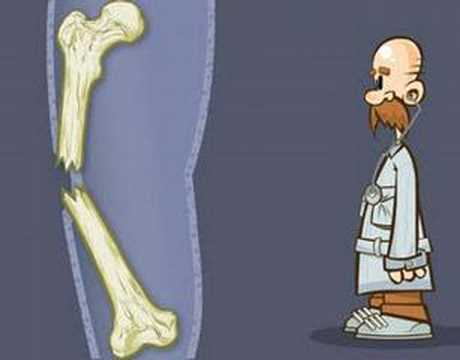 Nevralgie, mal di schiena trattamento