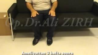 Mehiyeddin Sadıkov Parkinson Beyin Pili ameliyatı öncesi ve 3 hafta sonrası