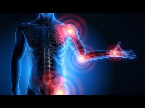 Petrezselyem az artrózis kezelésében