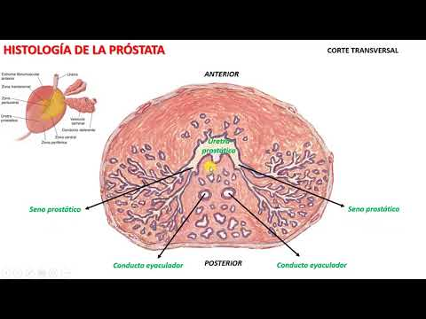 Vmlt prostatę