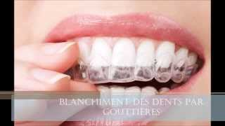 preview picture of video 'Michel Puertas Denturologiste-Brossard-La Prairie-St-Hubert-Longueuil-Candiac...(450) 923-7999'