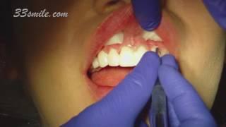Video of Gum Reshaping and Prepless Dental Veneers Patient at Cosmetic Dental Associates