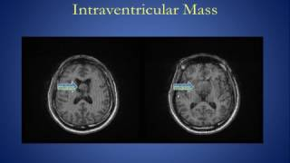 Intracranial Mass Lesions Version 1 0