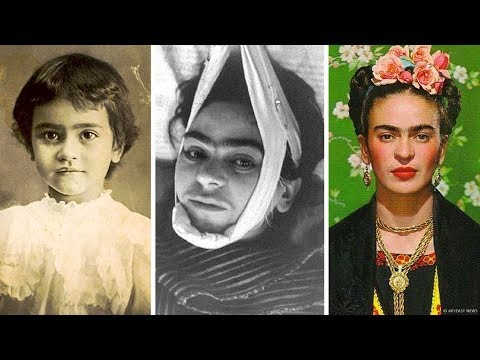 Video: La Trágica Historia De Frida Kahlo