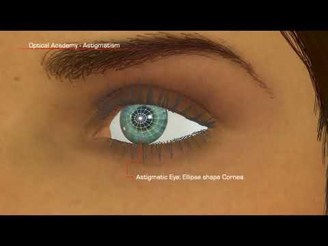 После ботокса упало зрение