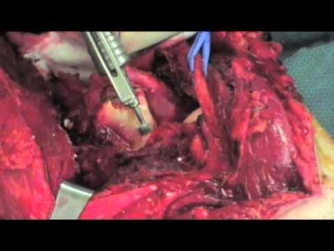 Radykalna resekcja guza  kości ramiennej i rekonstrukcja przy pomocy protezy