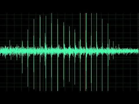 Blood Pressure: Korotkoff Sounds 1