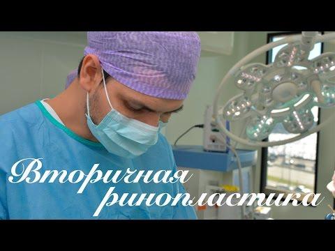 Вторичная ринопластика. Операция.
