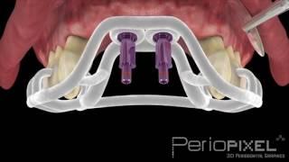 Cirugía guiada por ordenador en la Clínica Dental Adalia
