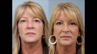 Upper Eyelid Sliver Blepharoplasty by Dr. Edwin Williams