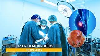 Video Laser Hemorrhoids surgery