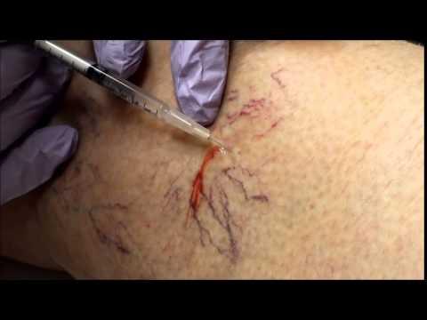 วิธีการป้องกันการพัฒนาของเส้นเลือดขอด