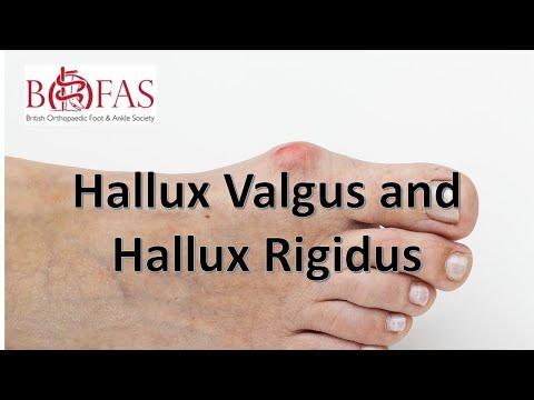 Recenzii privind tratamentul artrozei articulației șoldului