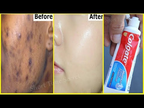 Facial mask na may clay pigment spots