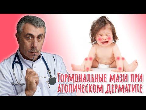Гормональные мази при атопическом дерматите - Доктор Комаровский