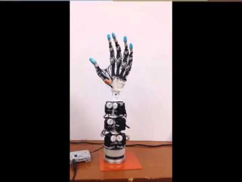 The highly Biomimetic Anthropomorphic Robotic Hand