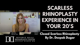 Ari's Scarless Scarless Nose Experience - Rhinoplasty with Dr. Deepak Dugar, Beverly Hills